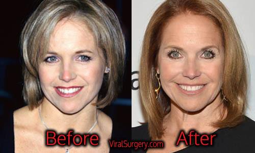 Katie Couric Plastic Surgery