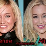 Kellie Pickler Plastic Surgery, Before and After Nose, Boob Job Pics