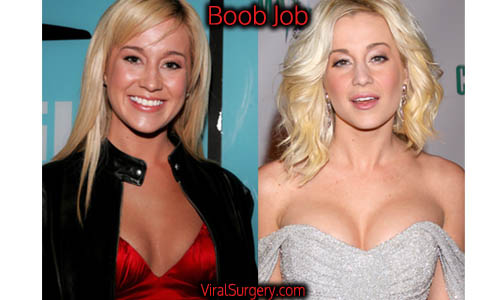 Kellie Pickler Plastic Surgery, Boob Job