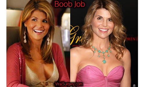 Lori Loughlin Plastic Surgery, Boob Job