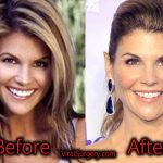 Lori Loughlin Plastic Surgery, Before and After Botox Pictures