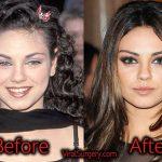 Mila Kunis Plastic Surgery: Before After Nose, Boob Job Pics