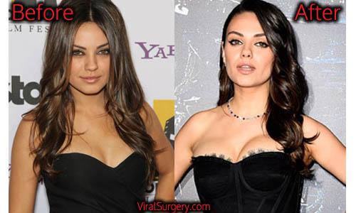 Mila Kunis Plastic Surgery, Boob Job