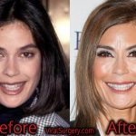Teri Hatcher Plastic Surgery, Before and After Facelift Pictures