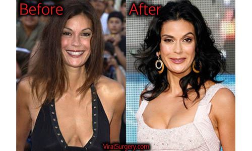 Teri hatcher breast pictures