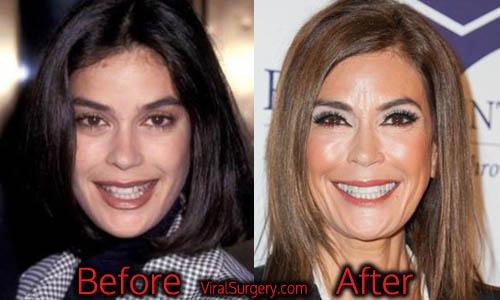 Teri Hatcher Plastic Surgery