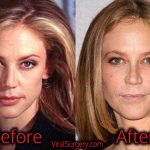 Ally Walker Plastic Surgery, Before and After Pictures