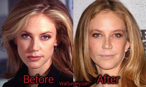 Ally Walker Plastic Surgery