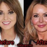 Carol Vorderman Plastic Surgery, Before and After Botox Pictures