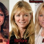 Cheryl Tiegs Plastic Surgery: Before After Facelift, Botox, Fillers Pictures