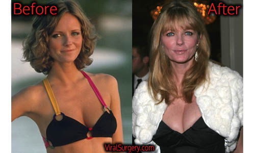 Cheryl Tiegs Plastic Surgery, Boob Job
