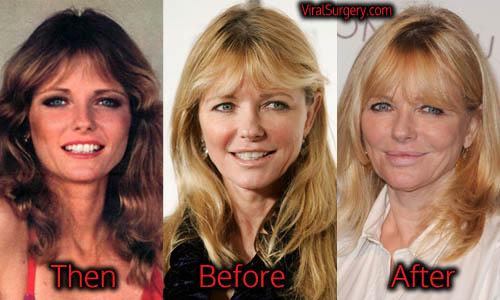 Cheryl Tiegs Plastic Surgery
