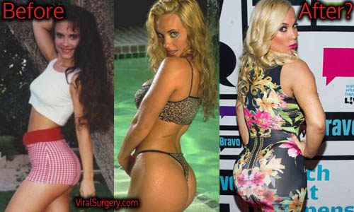 Coco Austin Plastic Surgery, Butt Implants