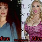 Coco Austin Plastic Surgery, Before and After Photos