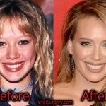 Hilary Duff Plastic Surgery, Before and After Nose, Boob Job Pics