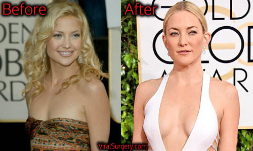 Kate Hudson Plastic Surgery, Boob Job