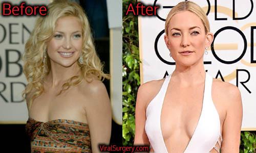 Kate Hudson Plastic Surgery, Boob Job