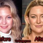 Kate Hudson Plastic Surgery, Before and After Photos