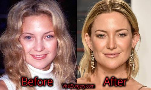 Kate Hudson Plastic Surgery