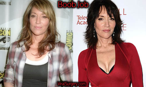 Katey Sagal Plastic Surgery, Boob Job