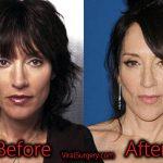 Katey Sagal Plastic Surgery, Before After Facelift, Boob Job Photos