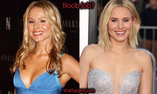 Kristen Bell Plastic Surgery, Boob Job