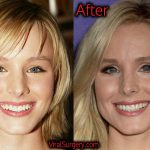 Kristen Bell Plastic Surgery, Before and After Pictures