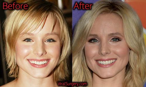 Kristen Bell Plastic Surgery