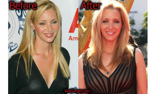 Lisa Kudrow Plastic Surgery, Boob Job