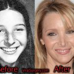 Lisa Kudrow Plastic Surgery, Before and After Nose Job Pictures