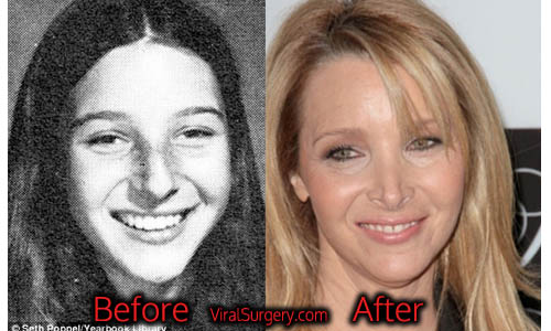 lisa kudrow plastic surgery before and after nose job pictures