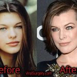 Milla Jovovich Plastic Surgery, Before After Facelift, Botox Rumors