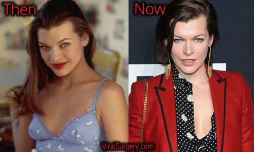 Milla Jovovich Plastic Surgery, Boob Job