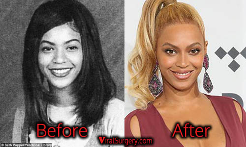 Beyonce Plastic Surgery, Nose Job