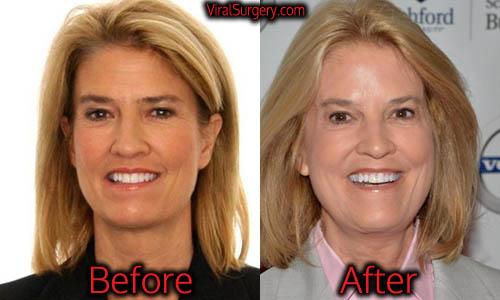 Greta Van Susteren Plastic Surgery, Facelift