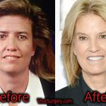 Greta Van Susteren Plastic Surgery, Before After Eyelift, Facelift