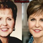 Joyce Meyer Plastic Surgery, Before and After Facelift Pictures