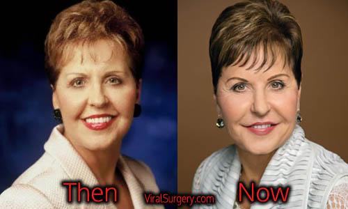 Joyce Meyer Plastic Surgery