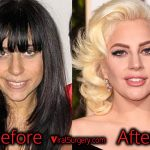 Lady Gaga Plastic Surgery: Nose Job, Fillers Before After Pictures