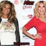 Wendy Williams Plastic Surgery, Before and After Liposuction Pictures