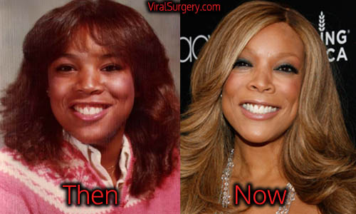 Wendy Williams Plastic Surgery, Nose, Face