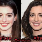Anne Hathaway Plastic Surgery, Before After Nose, Boob Job Photos