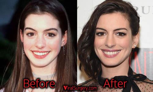 Anne Hathaway Plastic Surgery, Nose Job