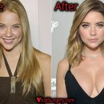 Ashley Benson Plastic Surgery, Before and After Boob Job Photo
