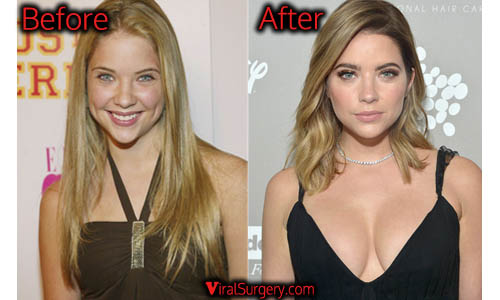 Ashley Benson Plastic Surgery, Boob Job