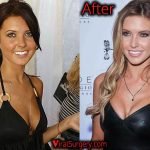 Audrina Patridge Plastic Surgery: Boob Job, Nose Job Before and After