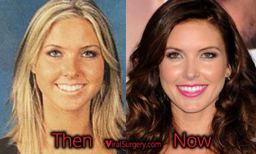 Audrina Patridge Plastic Surgery