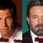 Ben Affleck Plastic Surgery, Before and After Botox, Fillers Pictures