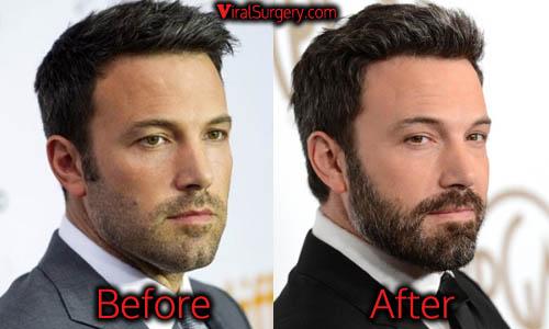 Ben Affleck Plastic Surgery, Botox