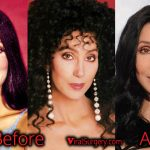 Cher Plastic Surgery, Before and After Facelift, Fillers Photos